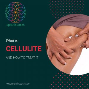 What is Cellulite and How to Treat it